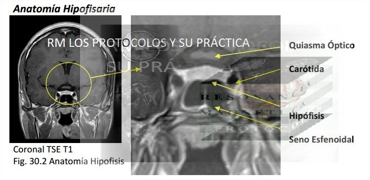 HIPÓFISIS : Resonancia Magnética, los protocolos y su práctica.