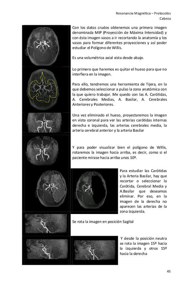 Famoso Rm Cerebral Anatomía Embellecimiento - Imágenes de Anatomía ...