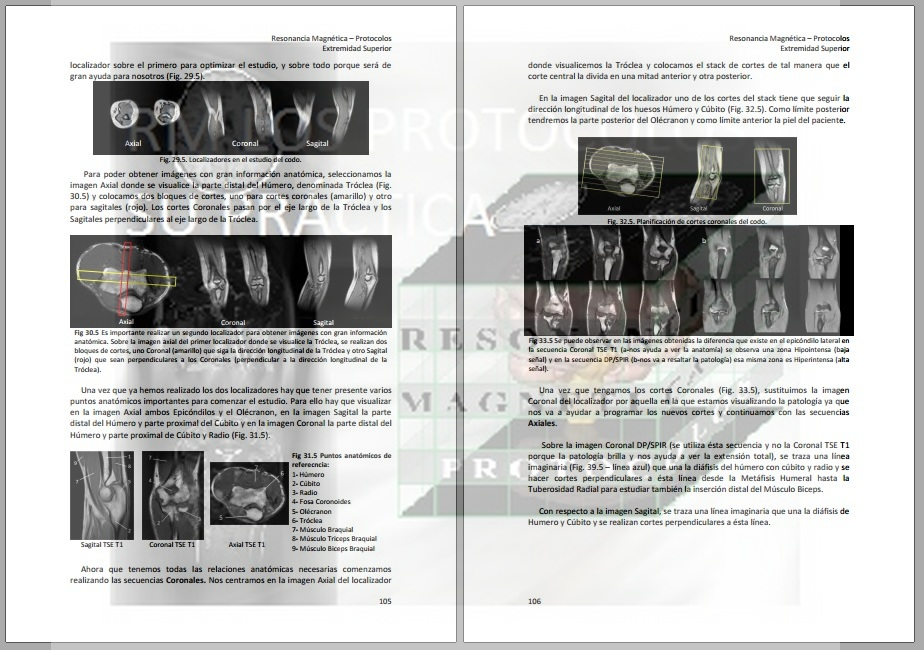 Codo : Resonancia Magnética, los protocolos y su práctica.