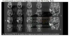cor_macizo-facial_patologia