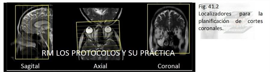 ÓRBITA : Resonancia Magnética, los protocolos y su práctica.