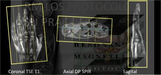 MANO : Resonancia Magnética, los protocolos y su práctica.