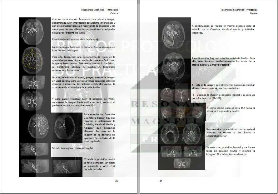 Polígono de Willis : Resonancia Magnética, los protocolos y su práctica.