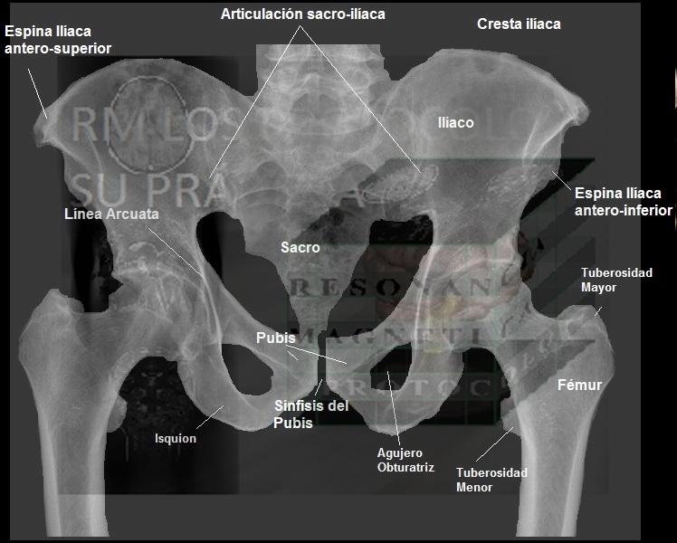 SACRO-COXIS : Resonancia Magnética, los protocolos y su práctica.
