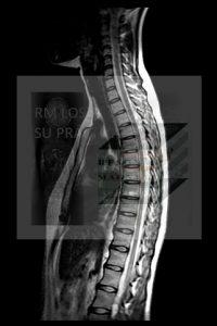 Imagen Sagital para contar vértebras desde la Cervical