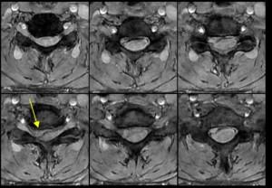 Axial EG T2 Columna Cervical