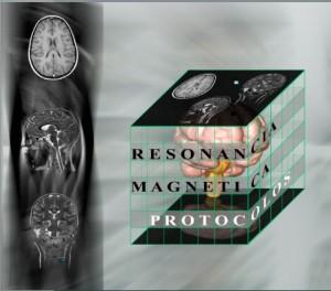 Resonancia Magnética, los protocolos y su práctica.